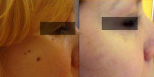αφαίρεση σπίλου,σμηγματογόνος κύστη,λίπωμα