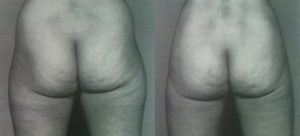 liposuction,medical turism in greece,pictures,images