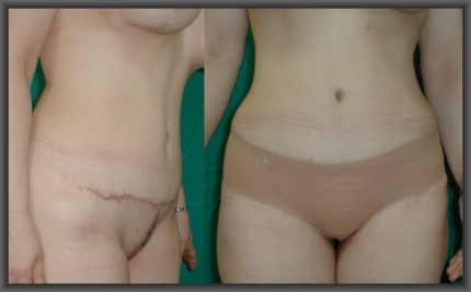 simultaneous abdominoplasty breast augmentation, no breast scars, medical turism in greece,cheap abdominoplasty