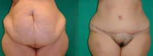 obese patient, abdominoplasty, medical turism in greece