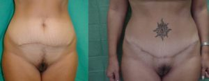 addominoplastica, chirurgia in Grecia