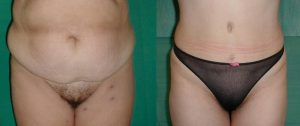 abdominoplasty in Greece,medical turism in greece,save money