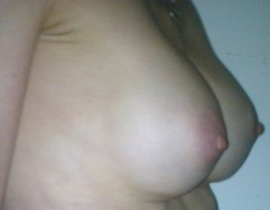 breast augmentation,breast volume photo,silicone implants,perfect breasts,plasic surgery in greece,medical turism in greece