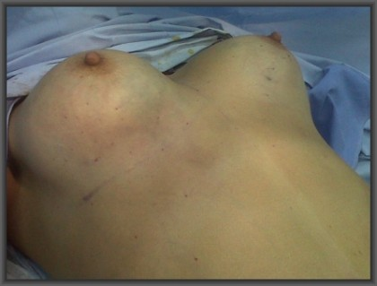 simultaneous abdominoplasty breast augmentation, no breast scars, medical turism