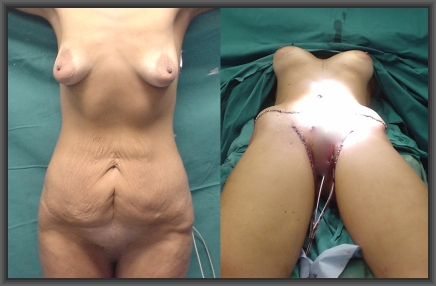 massive weight loss,plastic surgery,low cost plastic surgery,medical tourism greece