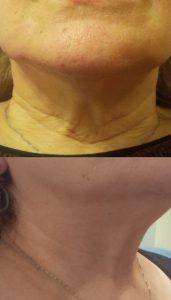 λαιμός,υαλουρονικό και μπότοξ λαιμου, λιφτινγκ λαιμού